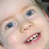 A Personal Story of the Progression of SMA in a Child